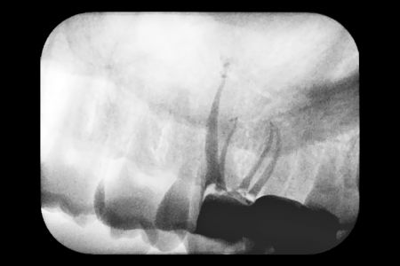 Endodoncia 03 Radiografia del Tratamiento
