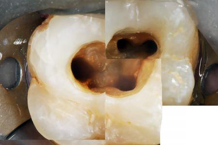 Endodoncia 04