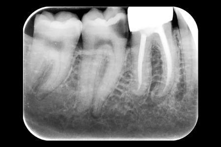 Endodoncia 05 Radiografia de Diagnóstico