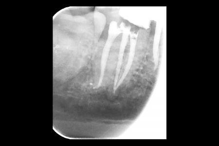 Endodoncia 06 Radiografia Final del Tratamiento